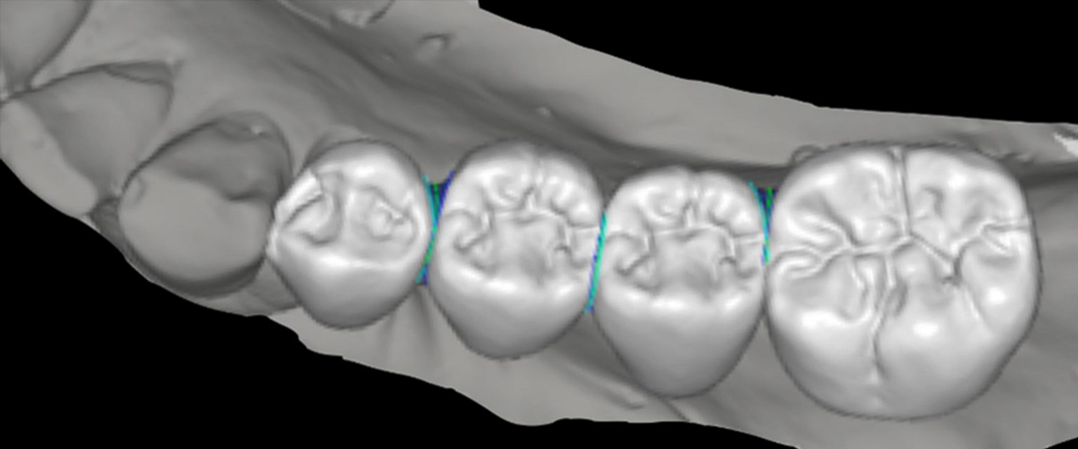 dental ceramic materials