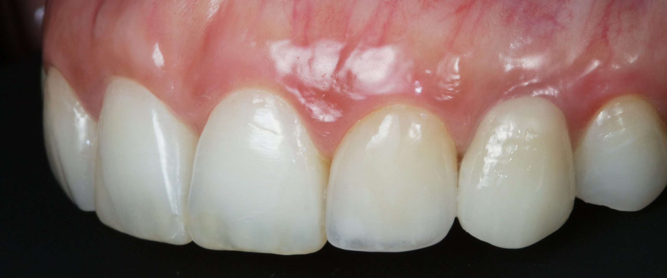 Dental soft tissue management