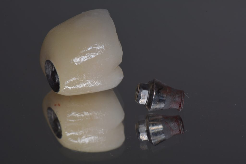 Fig 10c Fractured implant neck