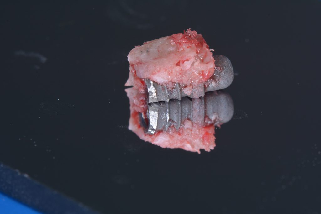 Fig 10d Removed implant with partial bone removal