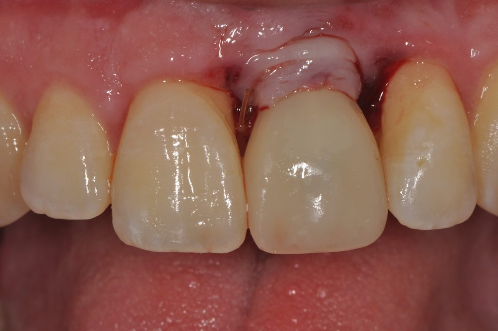 Fig.1: Screw retained provisional with a facial aspect installed at the uncovering procedure. Access closed with composite and 4 weeks tissue healing