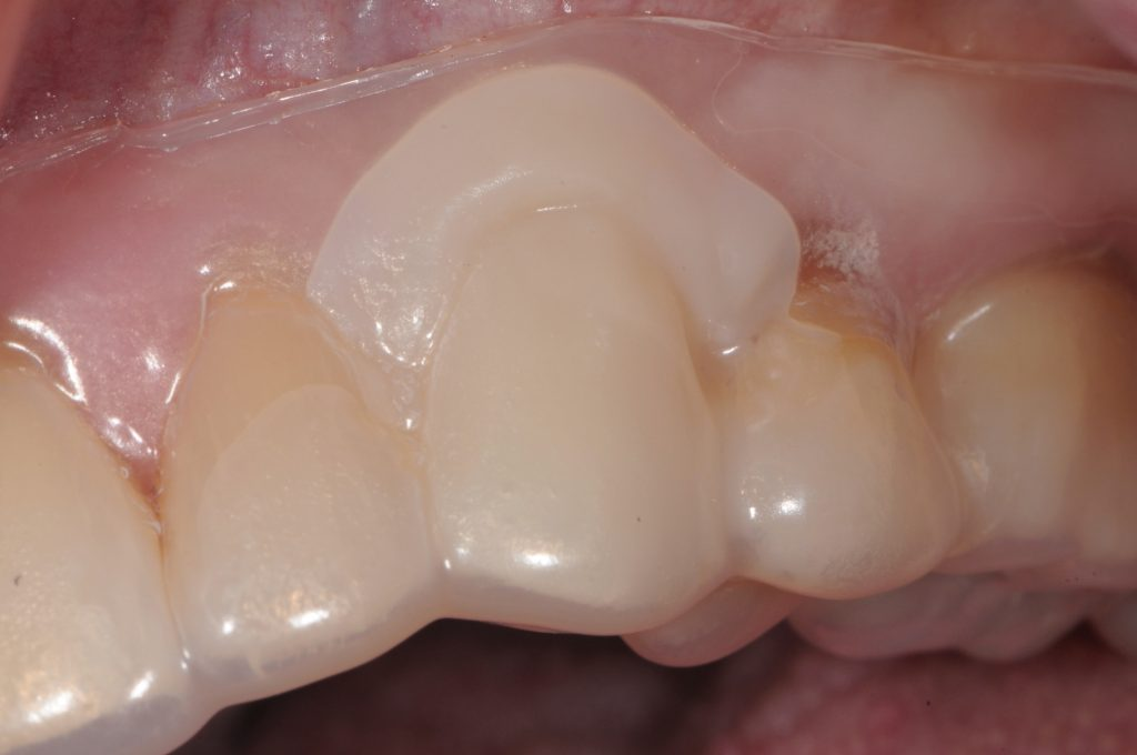 Fig. 2: PEEK abutment modification and vacuum-formed matrix used for intra-oral provisional fabrication