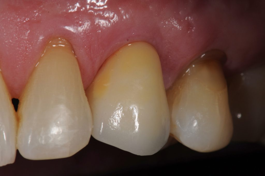 Fig. 3: Provisional is finished and polished extra-orally. Provisional delivery and final restoration