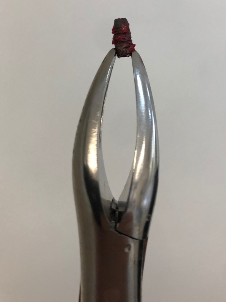 Fig. 4 Forceps connected to the implant platform