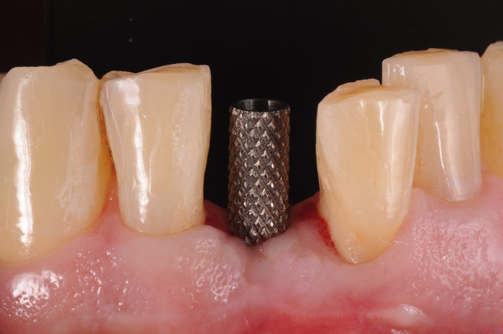 Fig. 4: Titanium temporary abutment is selected and a vacuum-formed matrix verifies whether it is necessary to trim the abutment extra-orally