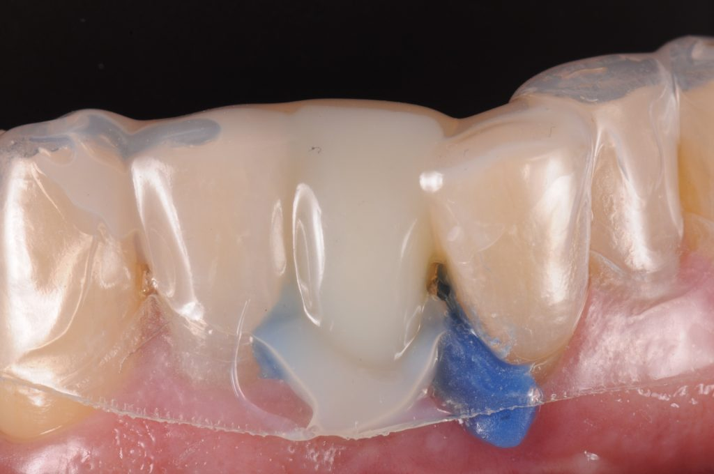Fig. 5: Titanium temporary abutment after adjusting and opaquing with light cure composite. The interproximal undercuts are blocked out with blue material and screw access protected with Teflon tape. Matrix is filled with Bis-GMA material and seated intra-orally