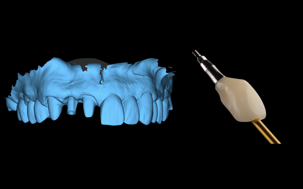 Fig. 1: Virtual implant impression exported from surgical planning software (CoDiagnostiX) before implant placement and an immediate implant crown prepared for the patient by a lab technician before surgery