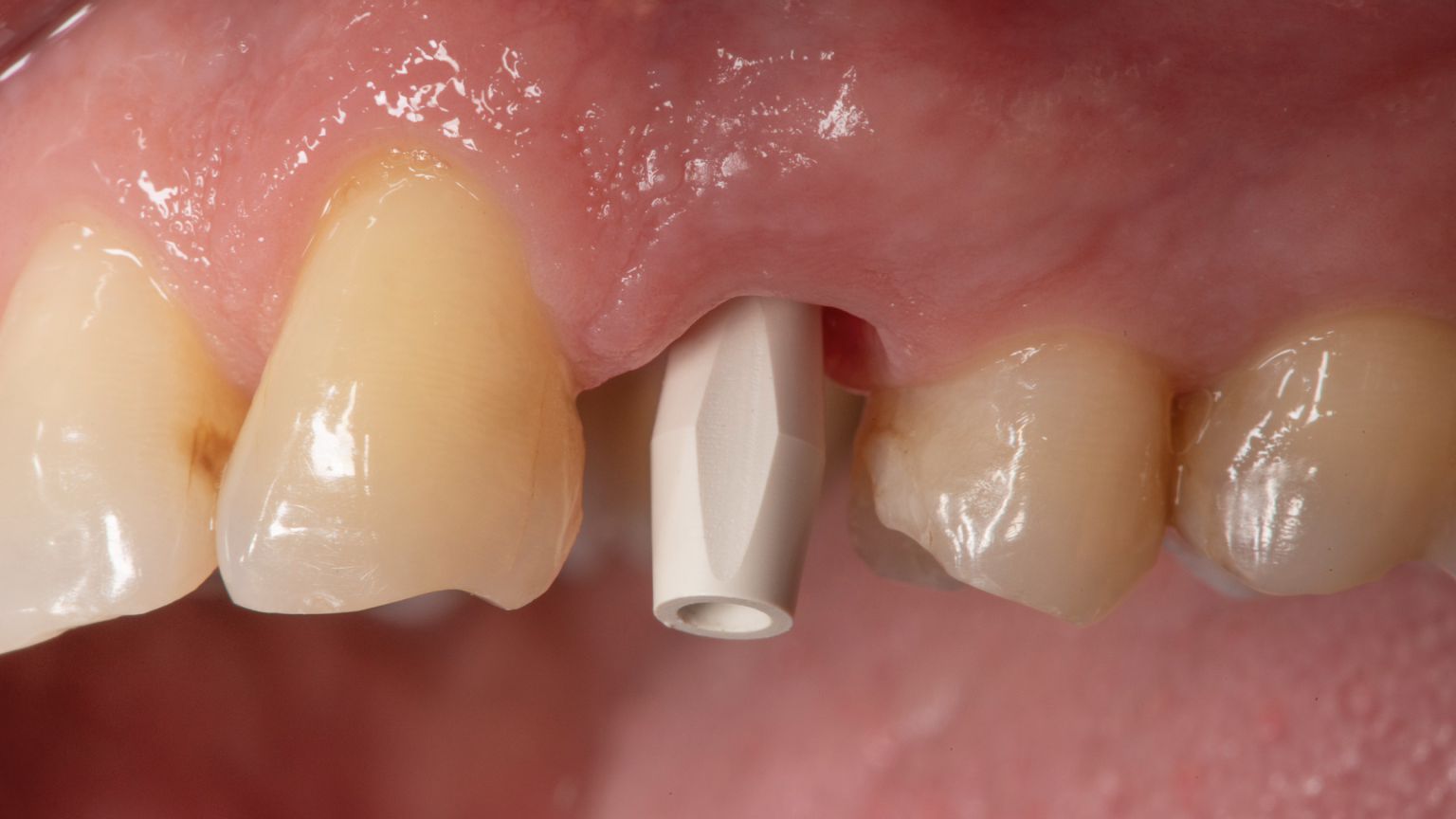 Figs 2-3: Digital implant impressions for single implant – scanbody in place