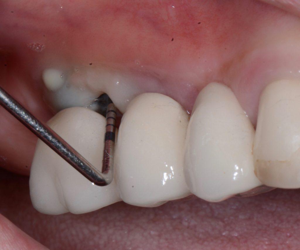 Failing dental implants