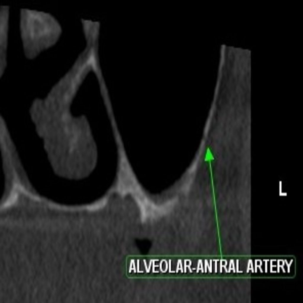 Fig 7: CBCT analysis revealing the presence of alveolar antral arteries in region of 26.