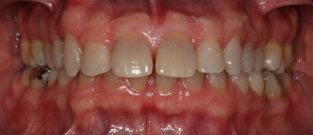 Fig. 1a: Clinical photograph of a patient with a seemingly intact periodontium