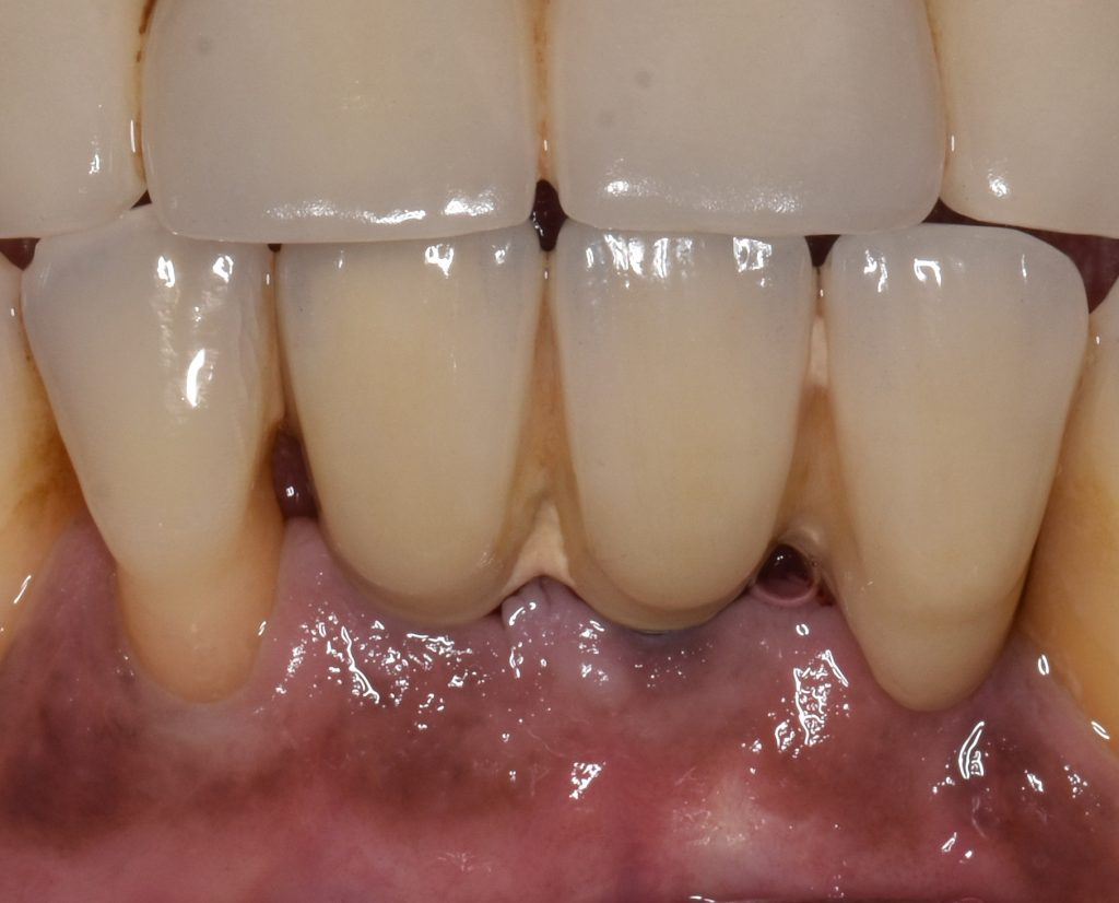 Fig. 2: Calculus deposits around lower implants due to poor compliance and oral hygiene